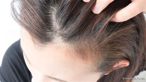 duenne haare tipps zur schnellen abhilfe netdoktorde