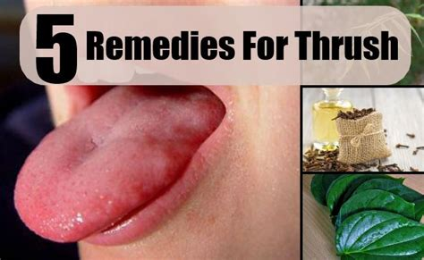 effective home remedies for thrush treatments