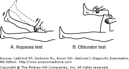 psoas and obturator sign quotes