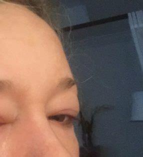 Lymphatic Drainage Eye Detox by My Lymphatic Drainage Detox Experience Plus Q A