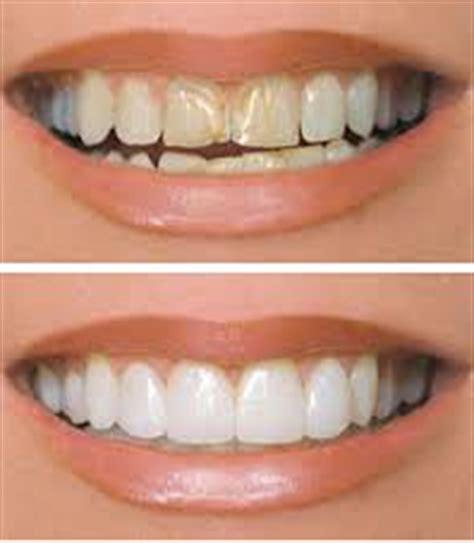 Veneer Pemutih Gigi veneer gigi gigi kelinci seperti olla ramlan materi pelajaran smp terbaru