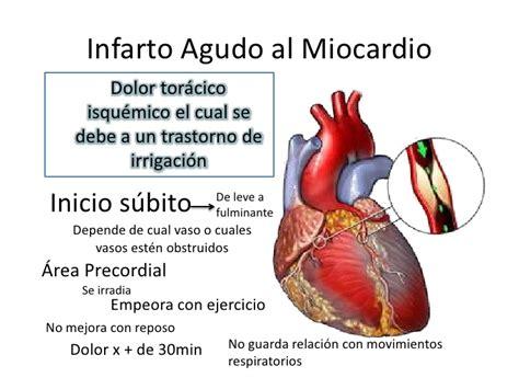 l infarto del miocardio semiolog 237 a del infarto agudo al miocardio