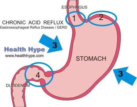 reflux diagram heartburn and sleeping problems reasons and remedies