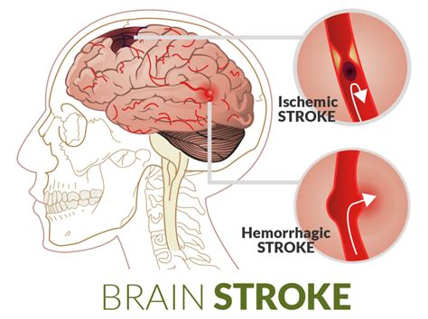 can a a stroke knowing these 12 symptoms of a stroke can save lives faithpanda