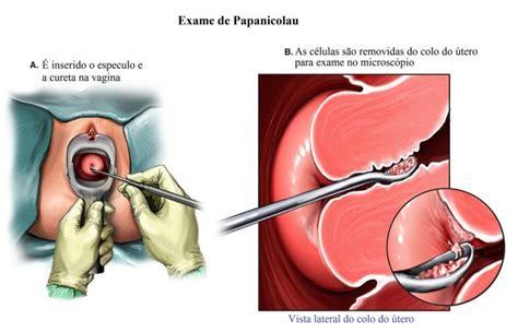 flogosi pap test cura exame preventivo feminino ou teste de papanicolau