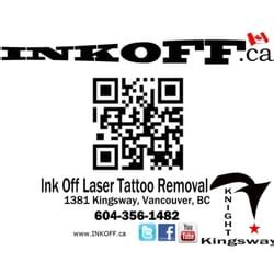 laser tattoo removal vancouver inkoff laser removal removal 1381