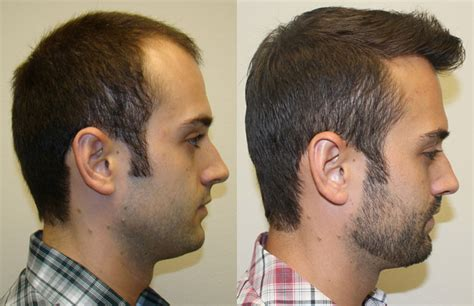 correct haircut transplant how long after hair transplant haircut om hair