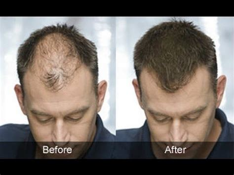 male pattern hair loss solutions 33 best images about male pattern baldness treatment on