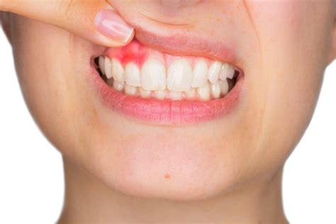 difference   tooth abscesses
