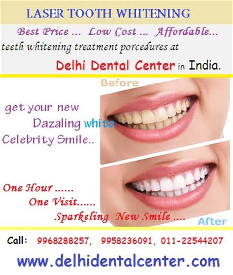 Leaves To Get Teeth Whitened by Laser Speed Tooth Whitening In East Delhi Delhidentalcenter