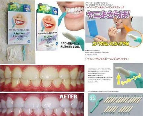 Alat Pemutih Gigi jual hyper dental peeling stick merk cogit alat pemutih