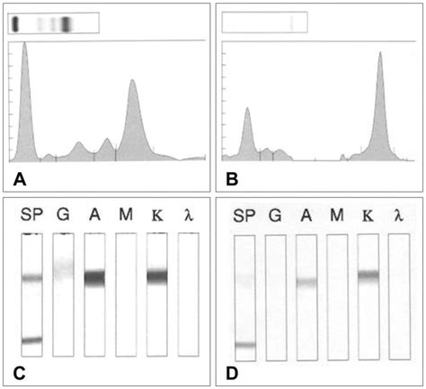 protein electrophoresis urine electrophoresis and immunofixations a serum