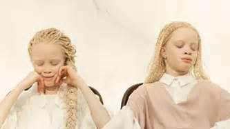 laras blancas lara y mara bawar las gemelas albinas de 11 a 241 os que han conquistado al mundo de la moda