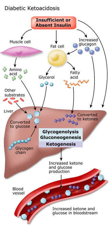 diabetes diagram ketoacidosis causes symptoms treatment ketoacidosis
