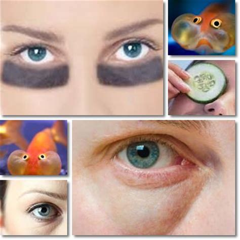 Reasons For Eye Circles And Puffiness by And Circles Causes And Remedies Natureword