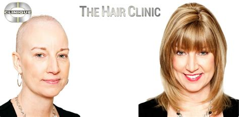 The Hair Clinic Look Feel Better Gazette Article Featuring Of The