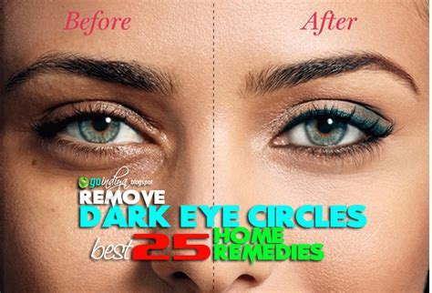 Reasons For Eye Circles And Puffiness by 16 Home Remedies To Remove Circles