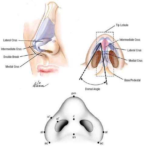 14 best what is rhinoplasty images on