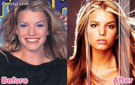 jessica robertson surgery funzug com stars before and after plastic surgery job