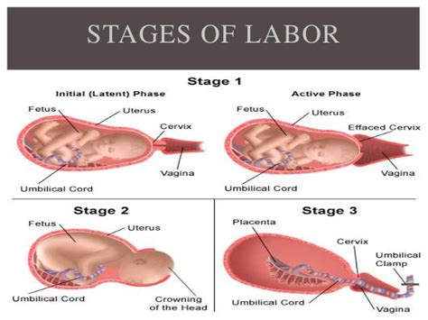 The Latencyperiod Of 1 stage of labour and midwifery care