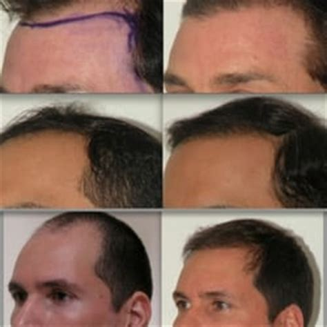 how is loop hair transplant done omeed memar md plastic aesthetic surgeons the loop