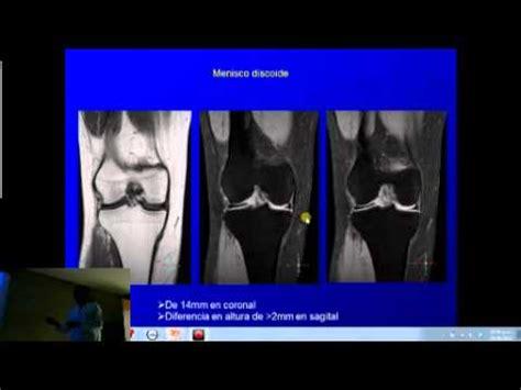 sana interno it resonancia magn 233 tica de rodilla