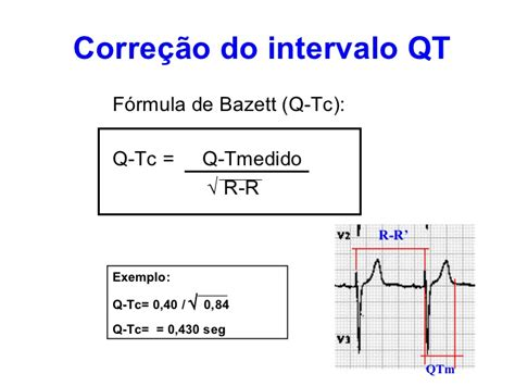 intervalo qt ecg normal