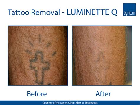 tattoo removal leeds reviews luminette q the perfect addition for laser tattoo