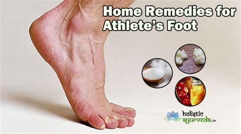 9 home remedies for athlete s foot cure with
