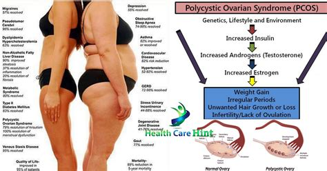 weight management with pcos pcos limited autos post