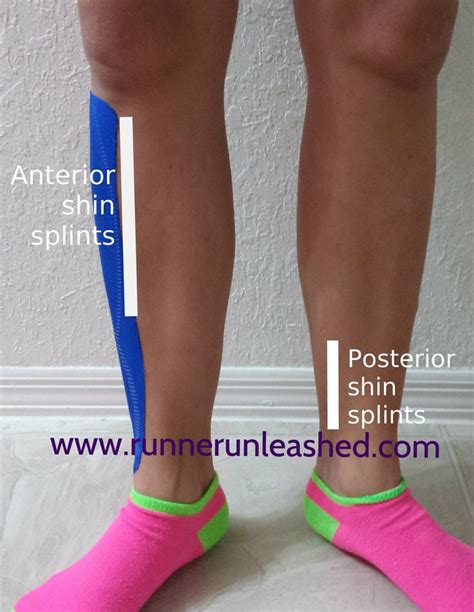 10 Common Preventable Workout Injuries by 10 Best Ideas About Shin Splints Taping On