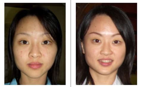 Wajah Melilea testimoni pemakaian skin care melilea melilea kosmetik