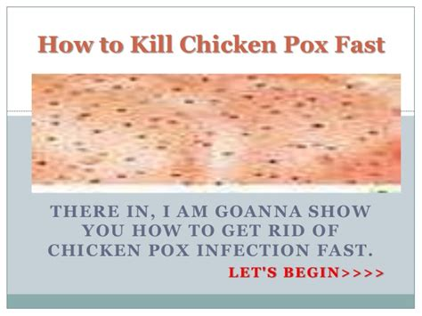 how to kill chicken pox fast