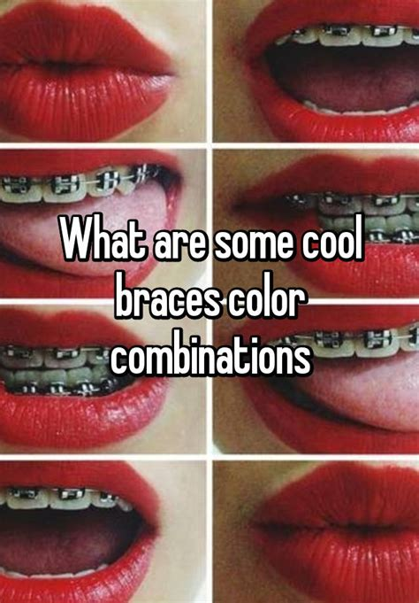 braces color combinations what are some cool braces color combinations