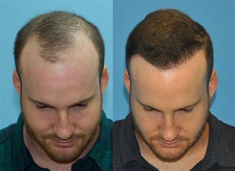 new hair transplant 2000 fue grafts case study norwood class iii