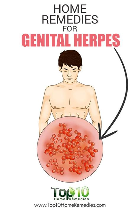 best herpes treatment best 25 herpes ideas on herpes cure