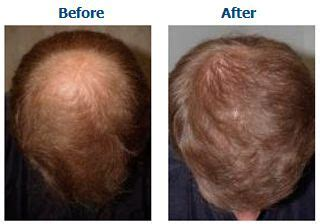 bald patches on head in older women baldness and bald spots treatments