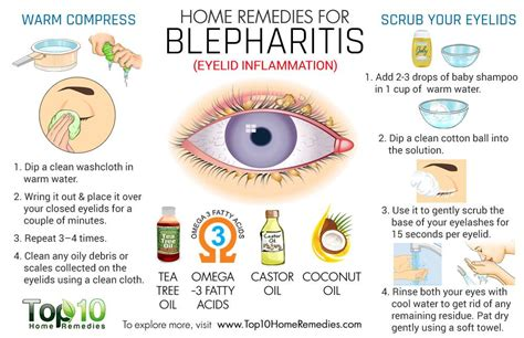 swollen eye home treatment home remedies for blepharitis eyelid inflammation top 10 home remedies