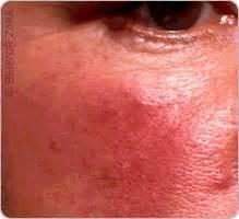 zona acn 233 chute de cheveux le point sur les maladies de