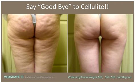 Does Red Light Therapy Work Cellulite Removal Plano Tx Body Contouring Frisco Tx