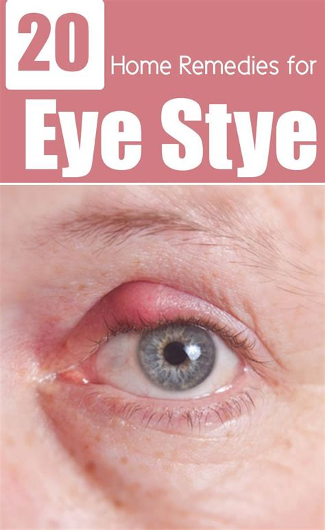 best 25 stye remedy ideas on eye stye