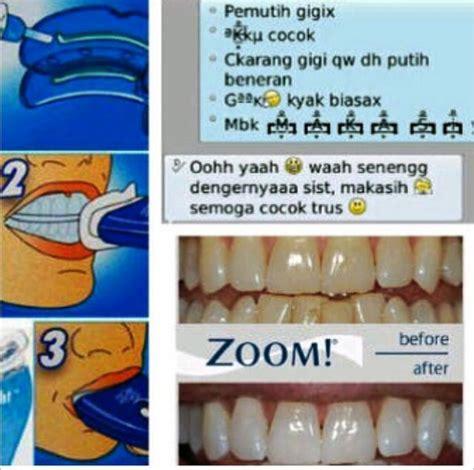 Baru Whitelight Tooth Alat Pemutih Gigi White Light Teeth Termurah whitelight pemutih gigi artis aman cepat mudah gigi putih