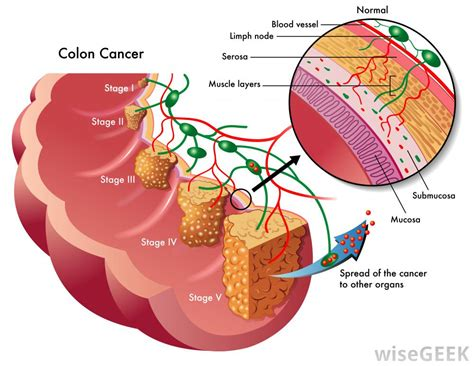 sections of colon what is the ascending colon with pictures