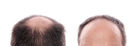hair transplant pricelist in thailand scalp micro pigmentation smp in bangkok find compare