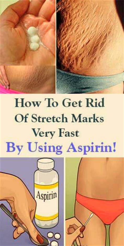 how to get rid of saggy belly after c section how to get rid of stretch marks very fast by using aspirin