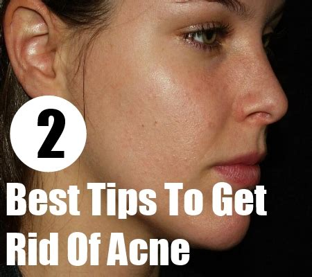how to get rid of acne overnight home remedies