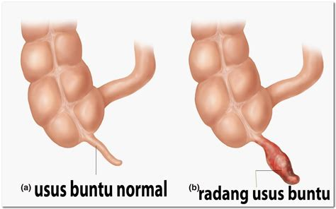 Herbal Laksus Obat Radang Usus gejala penyebab obat radang usus buntu atau apendisitis