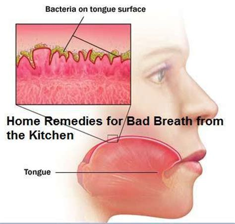 home remedies for bad breath daily inspirations for