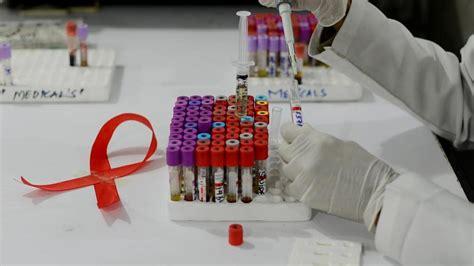 test hiv torino la salute a torino 187 infezione da hiv in aumento fra i