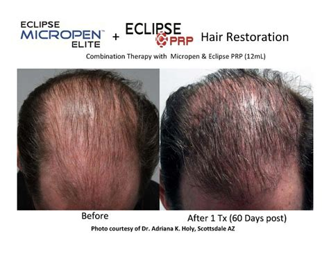 can platelet rich plasma stop hair loss and grow new hair hair loss treatment with eclipse prp micro needling stem